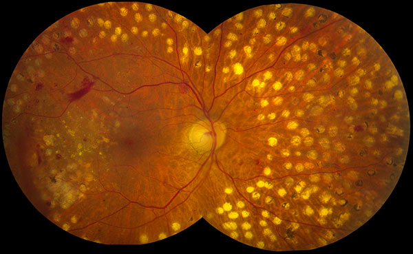 pjsaine com retinal photography montage and fundus