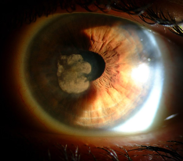 pjsaine com fine art ophthalmic photography